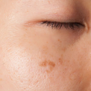 Study Confirms Skin Forms Dark Spots Due to Pollution